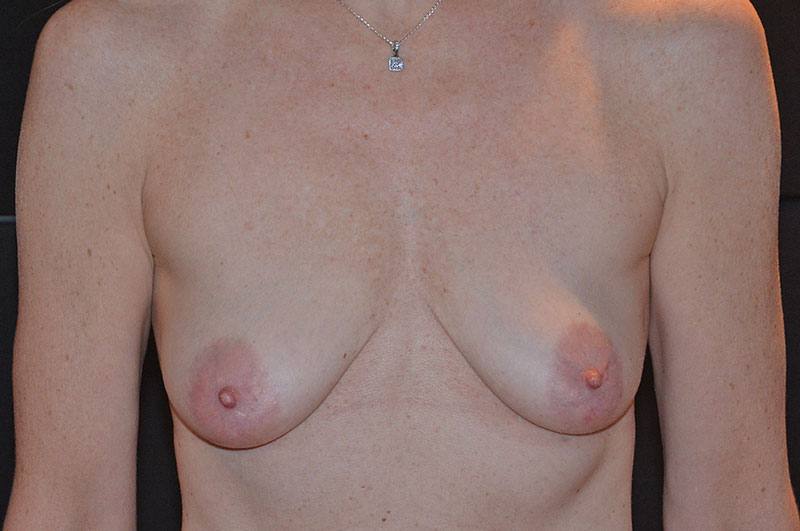 Breast Lift with Implants Akron Before & After | Patient 04 Photo 0 Thumb
