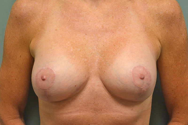 Breast Lift with Implants Akron Before & After | Patient 04 Photo 1 Thumb