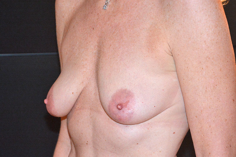 Breast Lift with Implants Akron Before & After | Patient 04 Photo 2 Thumb