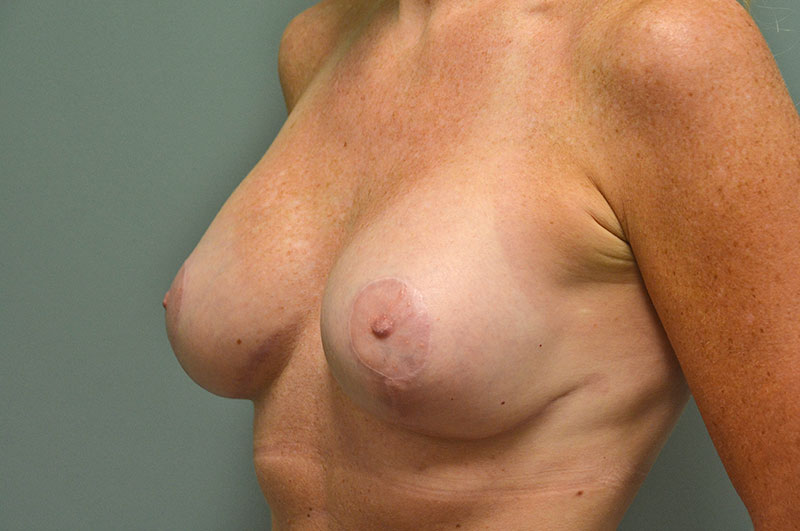 Breast Lift with Implants Akron Before & After | Patient 04 Photo 3 Thumb