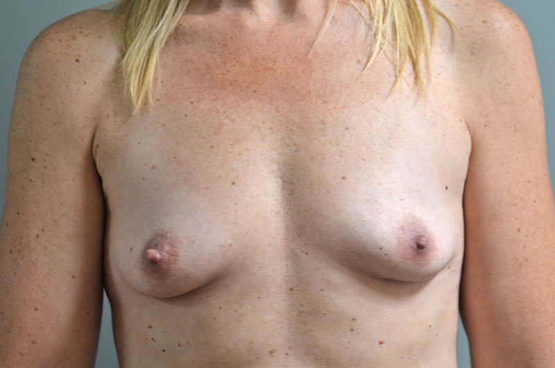 Breast Lift with Implants Akron Before & After | Patient 05 Photo 0 Thumb