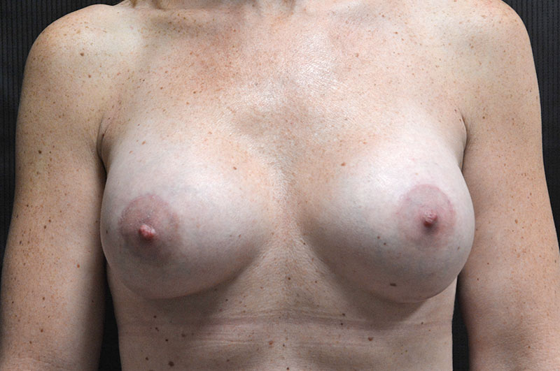 Breast Lift with Implants Akron Before & After | Patient 05 Photo 1 Thumb
