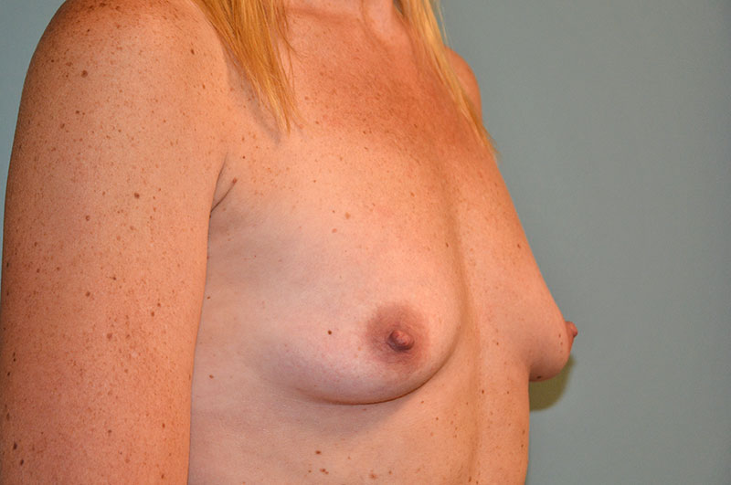 Breast Lift with Implants Akron Before & After | Patient 05 Photo 2 Thumb
