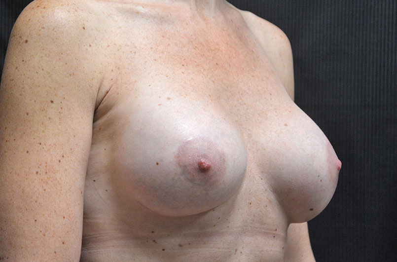 Breast Lift with Implants Akron Before & After | Patient 05 Photo 3 Thumb