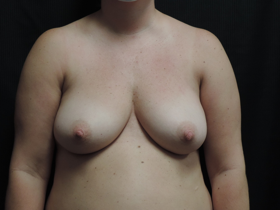Breast Lift Akron Before & After | Patient 01 Photo 0 Thumb