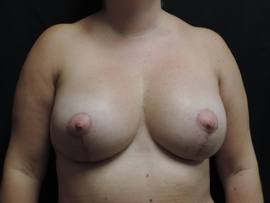 Breast Lift Akron Before & After | Patient 01 Photo 1 Thumb