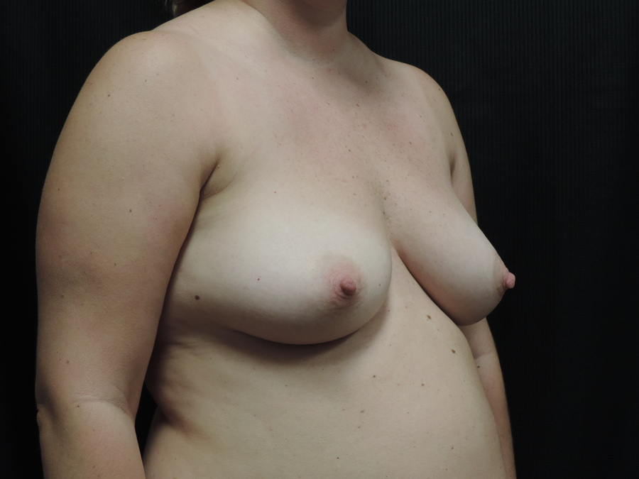 Breast Lift Akron Before & After | Patient 01 Photo 2 Thumb