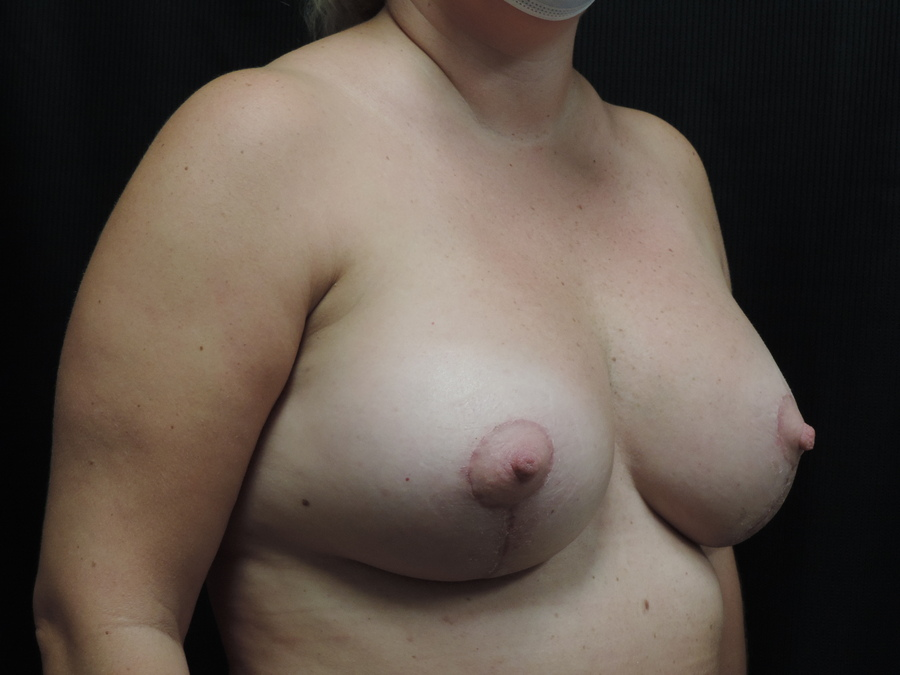 Breast Lift Akron Before & After | Patient 01 Photo 3 Thumb