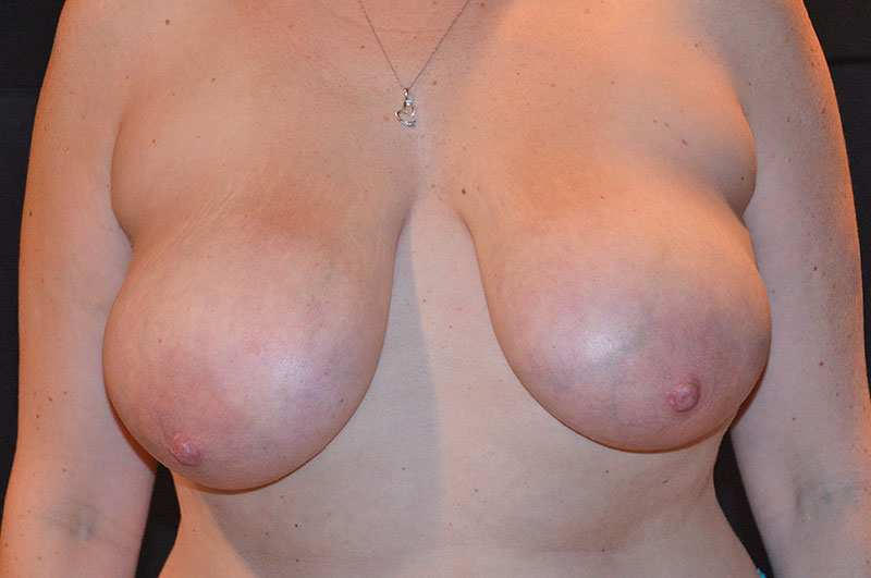 Breast Lift Akron Before & After | Patient 02 Photo 0 Thumb
