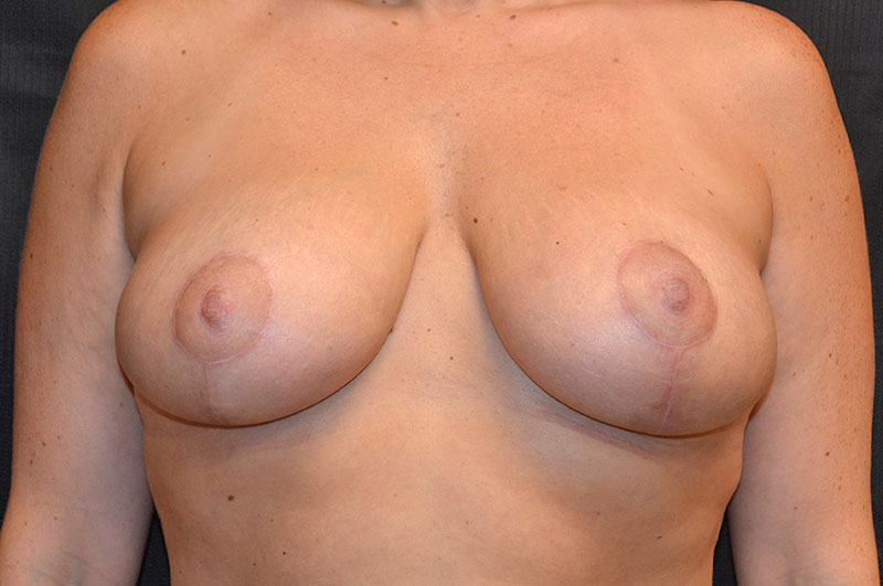 Breast Lift Akron Before & After | Patient 02 Photo 1 Thumb