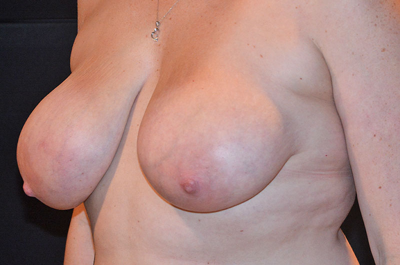 Breast Lift Akron Before & After | Patient 02 Photo 2 Thumb