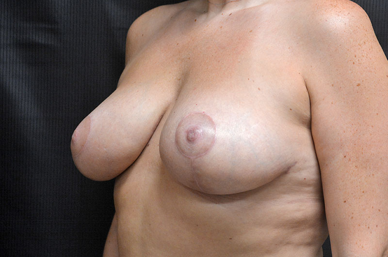 Breast Lift Akron Before & After | Patient 02 Photo 3 Thumb