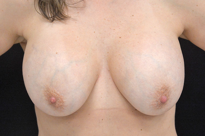 Breast Lift Akron Before & After | Patient 03 Photo 0 Thumb