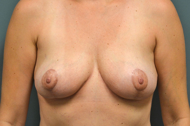 Breast Lift Akron Before & After | Patient 03 Photo 1 Thumb