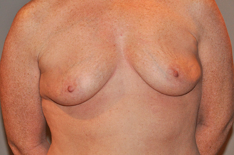 Breast Reconstruction Akron Before & After | Patient 05 Photo 0