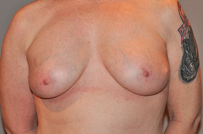Breast Reconstruction Akron Before & After | Patient 05 Photo 1