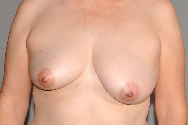 Breast Reconstruction Akron Before & After | Patient 06 Photo 0