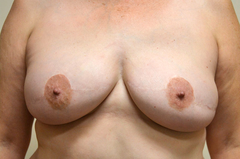 Breast Reconstruction Akron Before & After | Patient 06 Photo 1
