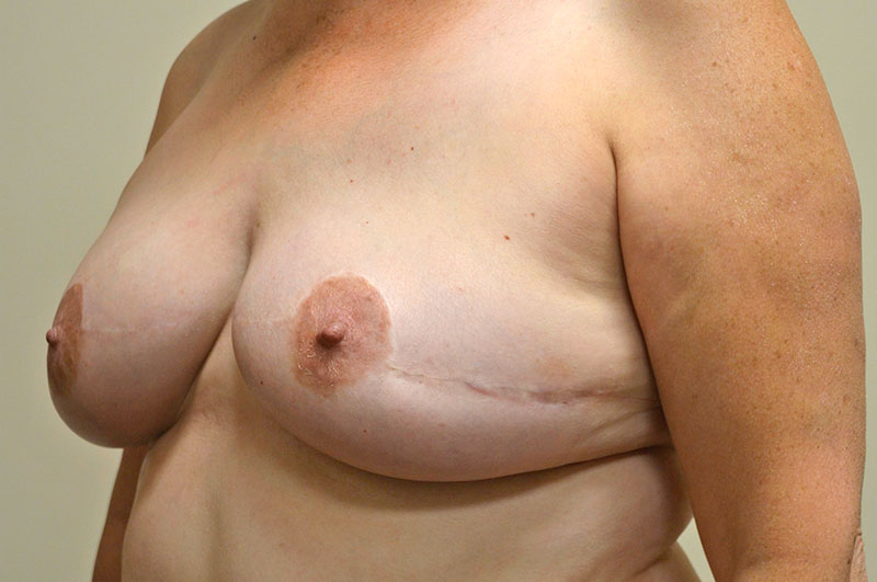 Breast Reconstruction Akron Before & After | Patient 06 Photo 3
