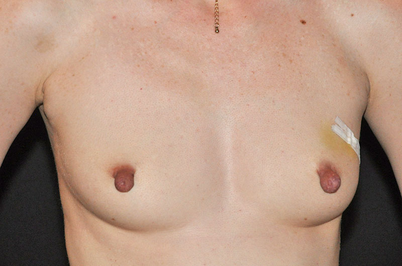 Breast Reconstruction Akron Before & After | Patient 07 Photo 0