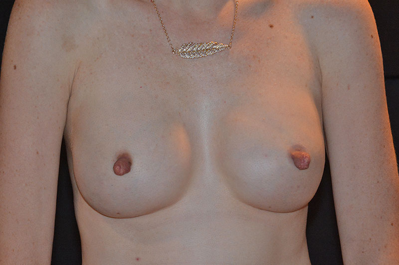 Breast Reconstruction Akron Before & After | Patient 07 Photo 1