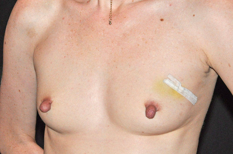 Breast Reconstruction Akron Before & After | Patient 07 Photo 2
