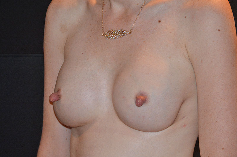 Breast Reconstruction Akron Before & After | Patient 07 Photo 3