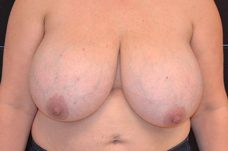 Breast Reduction Akron Before & After | Patient 03 Photo 0