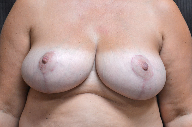 Breast Reduction Akron Before & After | Patient 03 Photo 1