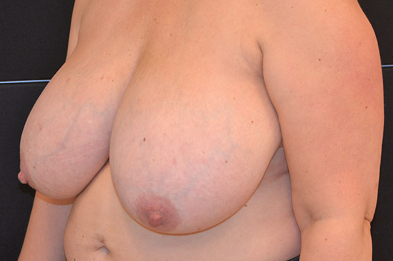 Breast Reduction Akron Before & After | Patient 03 Photo 2