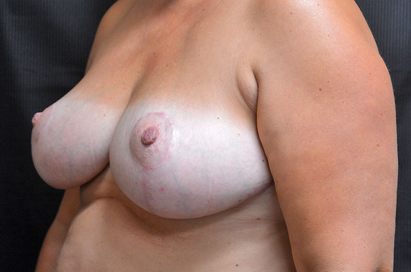 Breast Reduction Akron Before & After | Patient 03 Photo 3