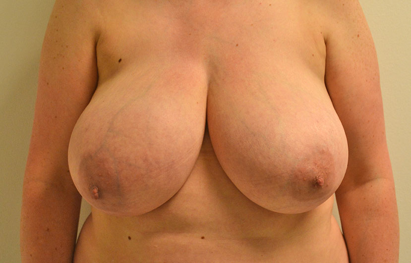 Breast Reduction Akron Before & After | Patient 04 Photo 0