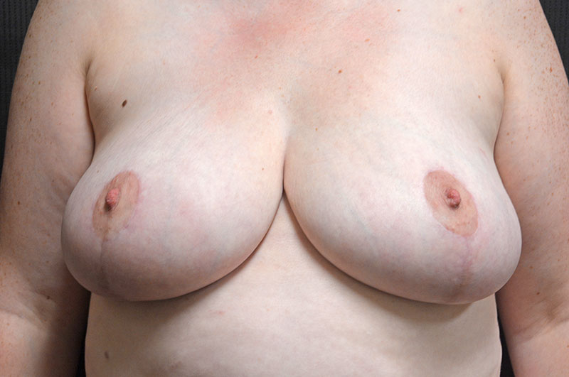 Breast Reduction Akron Before & After | Patient 04 Photo 1