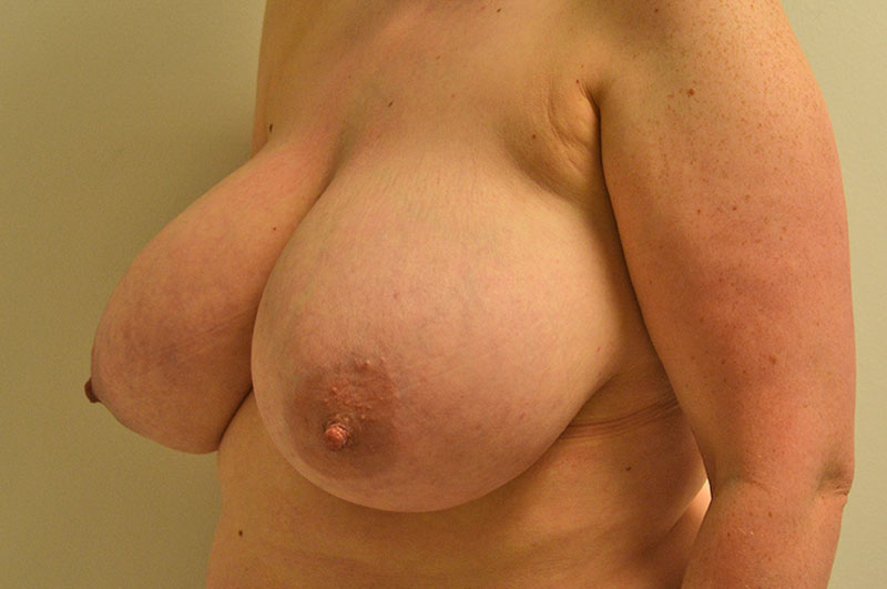 Breast Reduction Akron Before & After | Patient 04 Photo 2